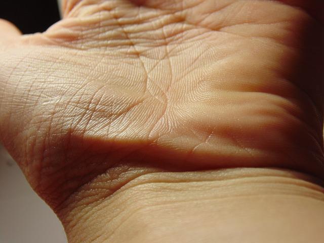 手のしこりが痛い!若い女性に多いガングリオンとは